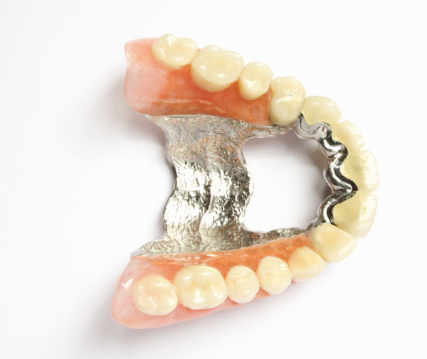 denture repair services